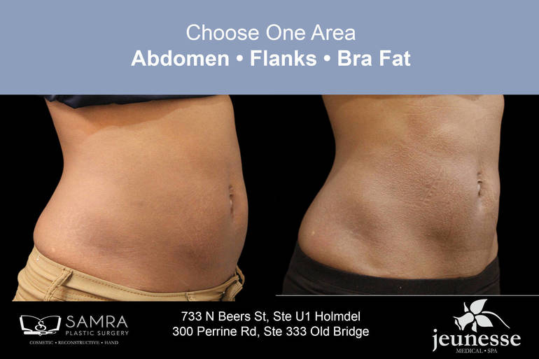 Free Consultation: $500 SAVINGS on Non-Surgical Vanquish Fat Elimination Sessions