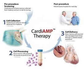Carousel image d2372b3d57acf21499ab biocardia cardiamp patient illustration brochure