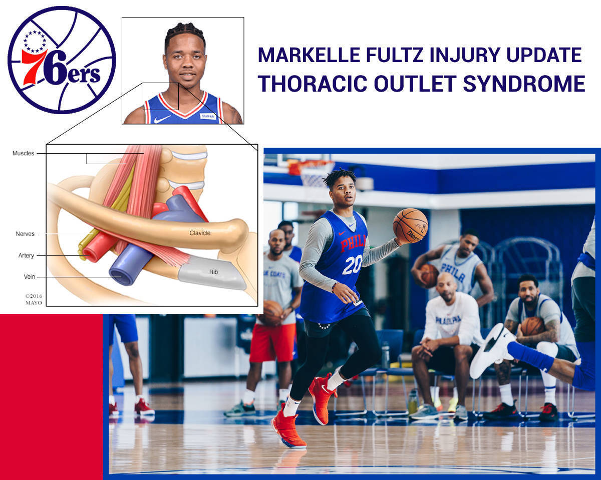 Markelle Fultz injury update: Sixers guard out indefinitely due to Thoracic Outlet Syndrome, a neck and shoulder injury