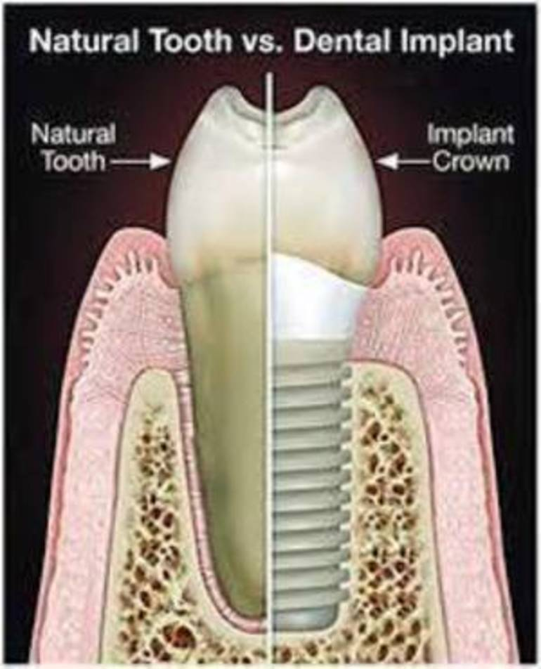 IMPLANT VS NATURAL TOOTH.jpg