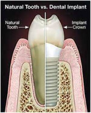 Carousel image 307f49513958368a523c implant vs natural tooth
