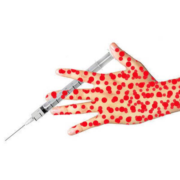measles-vaccine400.jpg