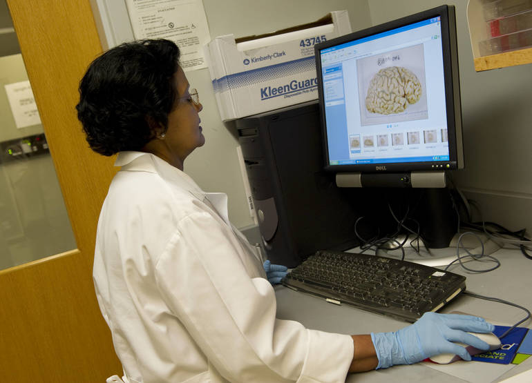 FDA Approves First Drug that Delays Decline Due to Alzheimer's