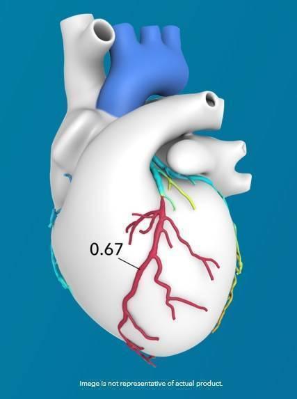 Heartflow.jpg