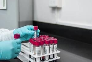 Clara Maass Medical Center, RWJBarnabas Health, blood screening