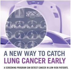 Incidental Lung Nodule Program
