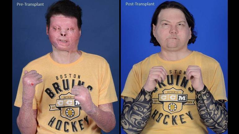 'I Never Knew This Was Possible' Says Clark Native Joe DiMeo of Face and Hand Transplant
